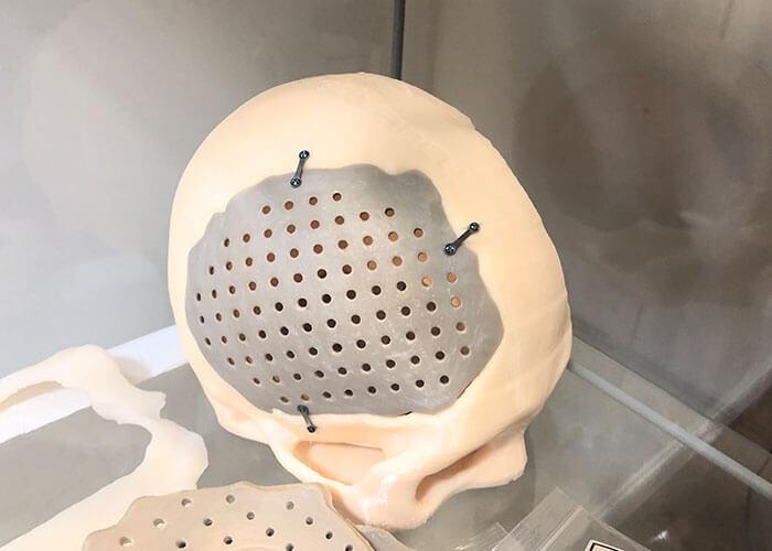Meditool entwickelt Schädelimplnatate aus PEEK-Kunststoff